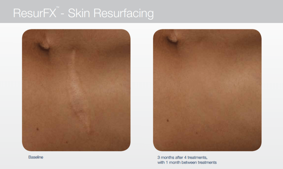 Before And After Scar Resurfacing with ResurFX