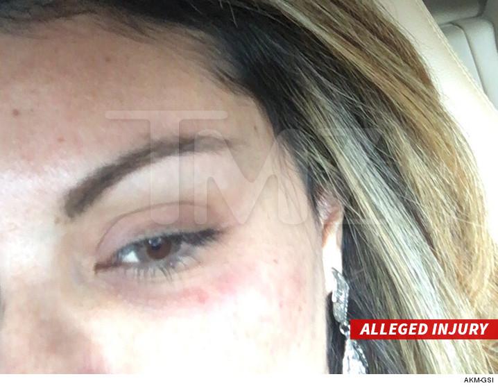 alleged-injury