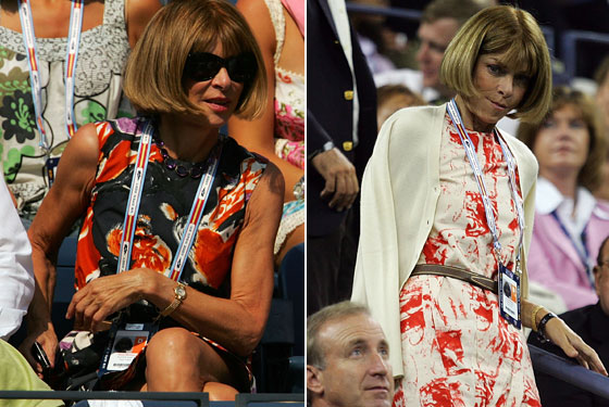 anna wintour's arms are gross