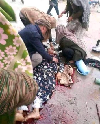A woman in district Taloqan, Takhar province, lying in a pool of blood as her parents and others crouch around her.