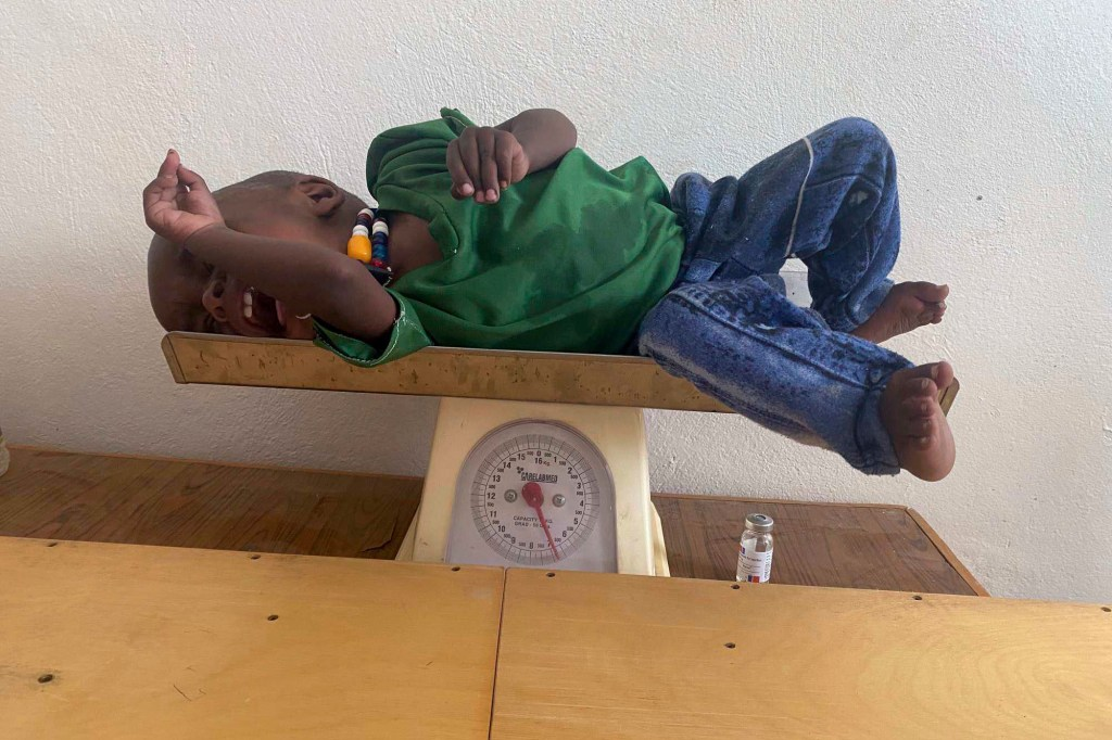 Amanuel Berhanu is weighed after being identified as severely malnourished, in the Wajirat district of the Tigray region of northern Ethiopia.