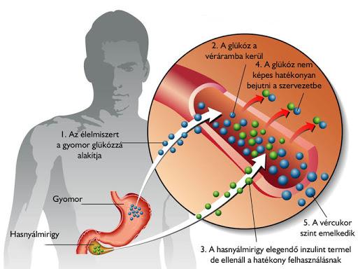 2-es típusú cukorbetegség