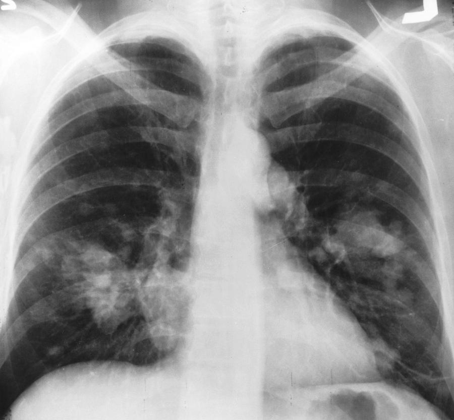 X-ray of a patient with lung cancer. New research by NYU scientists will hopefully improve treatment for lung cancer patients. (Via Wikipedia)