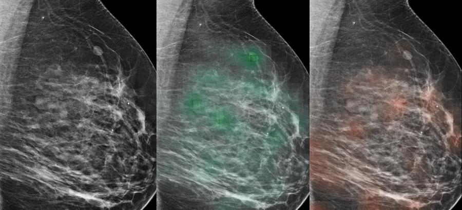 An AI tool learned to predict which lesions were likely malignant (red heat map) or likely benign (green heat map), with potential to aid radiologists in the diagnosis of breast cancer. (Via NYU Langone)