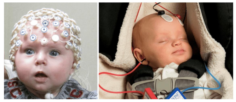 Слика 1. Разлики меѓу комплетен преглед со ЕЕГ (лево) и испитување реакција на звук од мозочното стебло (десно) кај бебиња (левата слика е преземена оттука, а десната оттука).
