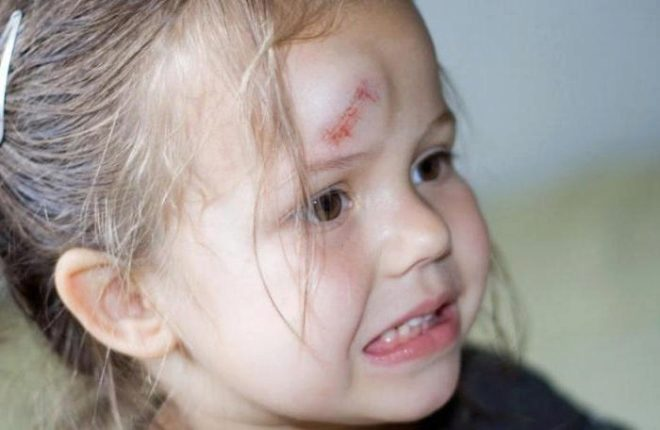 A heavy object aftermath fell on a child's head  The child