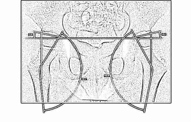 Возрастные особенности рентгеноанатомии тазобедренного сустава, рентгендиагностика дисплазии тазобедренного сустава