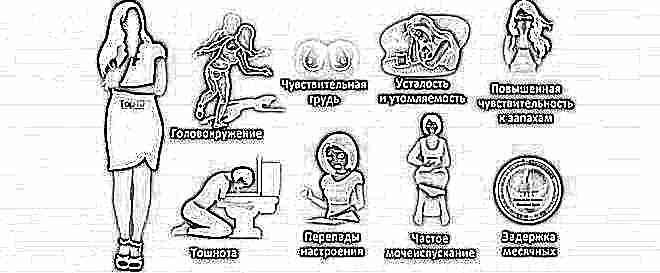 Беременность по неделям: от ощущений до развития крохи - 10
