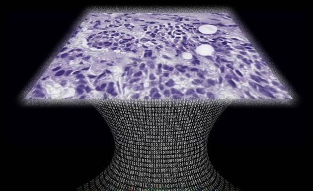 il microscopio senza lente lascia quasi chiunque cancro del punto
