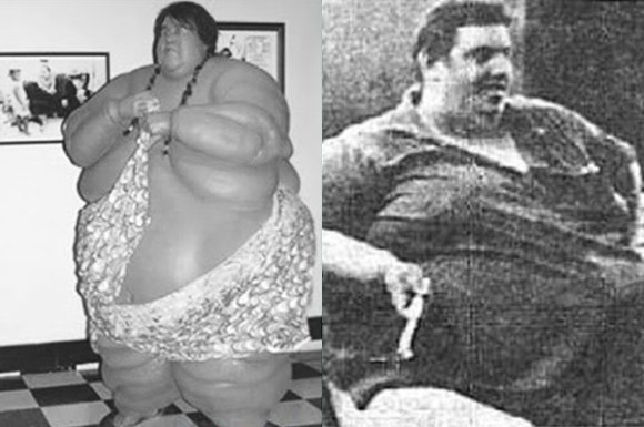 insane weight loss stories, crazy weight loss before and after