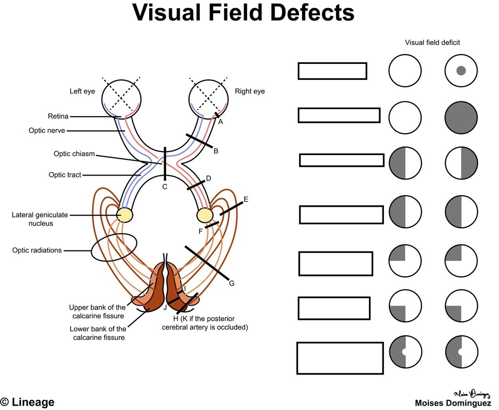 What Causes Color Blindness Quizlet
