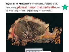 Image Result For Epithelial Mesotheliomaa