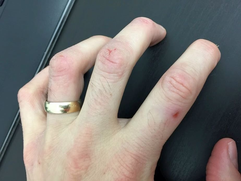 Hand with ring on, sever sores in different areas caused by eczema.