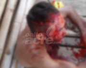 Taellon Ismaik foi levado para o hospital às pressas após perder muito sangue causado pelos ferimentos.