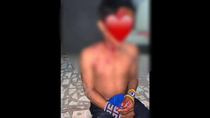 Em Mâncio Lima, jovem indígena teria sido baleado por causa de garrafa de 51