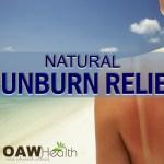 Natural Sunburn relief