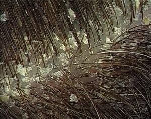 Odor no couro cabeludo