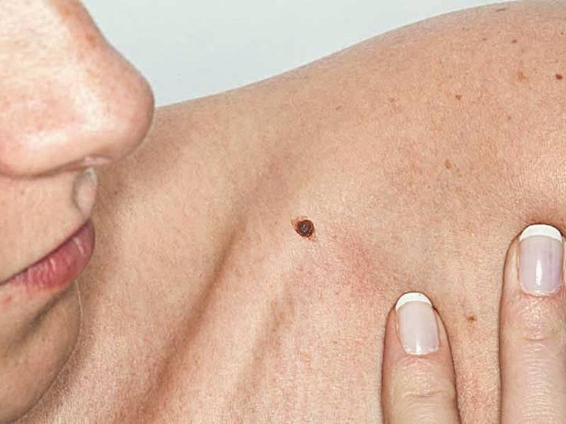 Kanker Kulit – Gejala, Penyebab, Pengobatan, Jenis