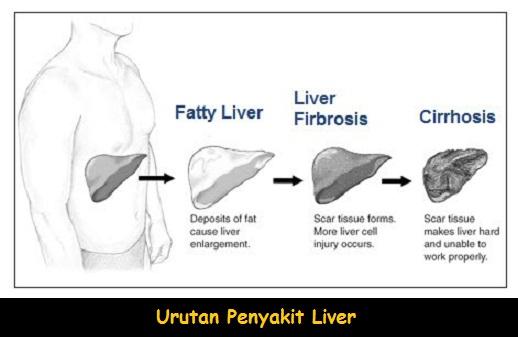 Mengobati Penyakit Liver Mengeras