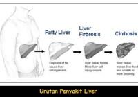 Tingkatan kerusakan liver atau hati