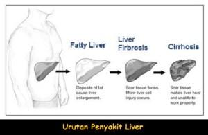 Cara Mengobati Liver Mengeras secara Alami