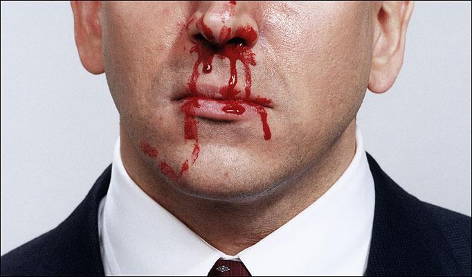 Obat Mimisan / Hidung Berdarah