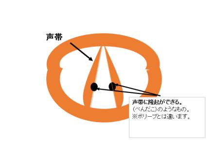 声帯結節図