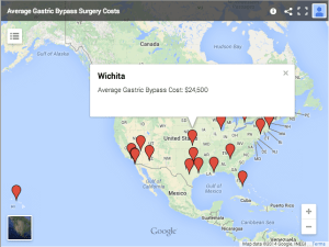 Cost of Gastric Bypass Surgery