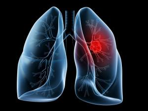 high-glycemic foods cause lung cancer