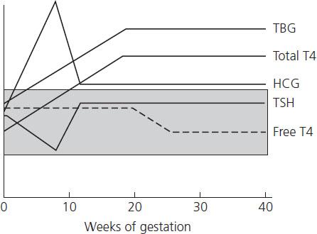 Thyroid Disease In Pregnancy Obgyn Key