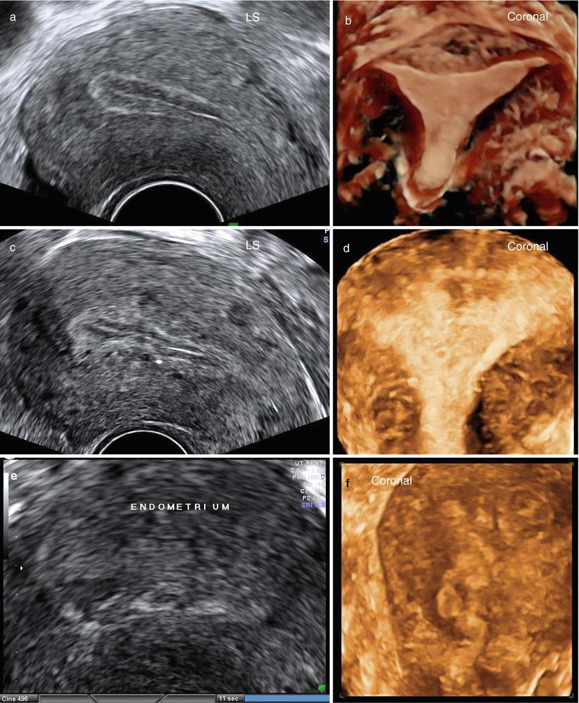 Ultrasound Evaluation of Endometrium   Obgyn Key