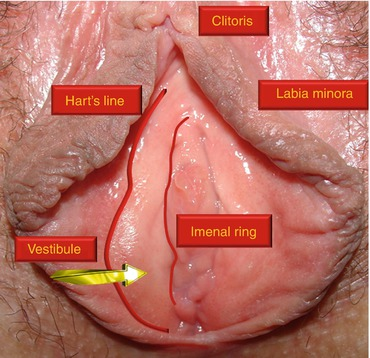 Engorged Clitoris Labia