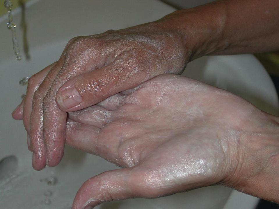 Photo displaying a pair of hands with creamy liquid (emulsifying ointment).