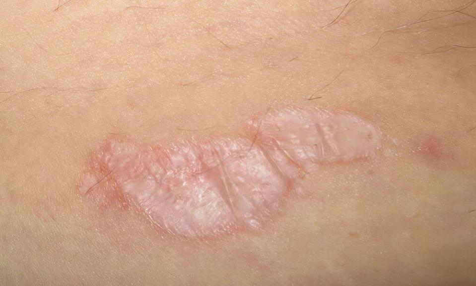 Photo displaying sclerotic extragenital LS on skin.