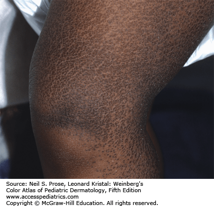 Steroid sulfatase deficiency ichthyosis steroid injections shoulder tendonitis