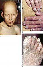 Ectodermal Dysplasias