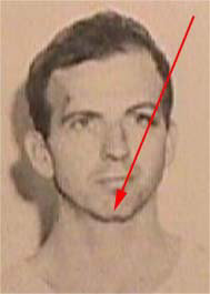 JFK Ass Oswald chin