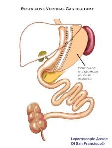 gastrectomie sleeve