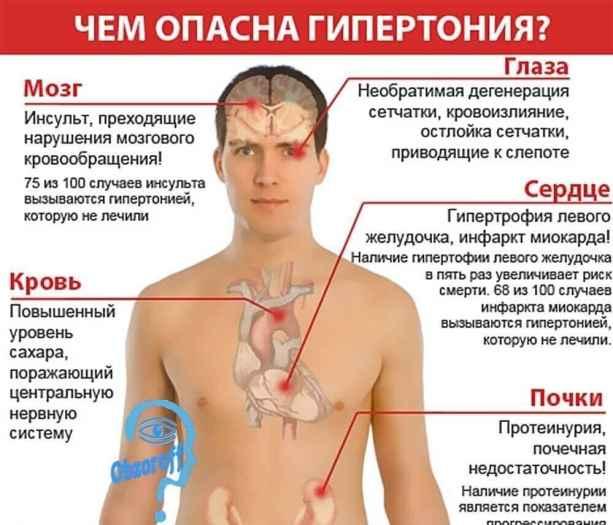 что такое гипертония и её последствия для человека