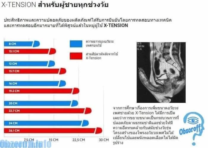 แคปซูล XTension เพื่ออวัยวะเพศชายจะแข็งตัวดีขึ้น ความยาวและเส้นรอบวงเพิ่มขึ้น X-Tension