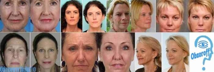 Rezultatul înainte și după aplicarea cremei de bioretin pentru întinerirea pielii