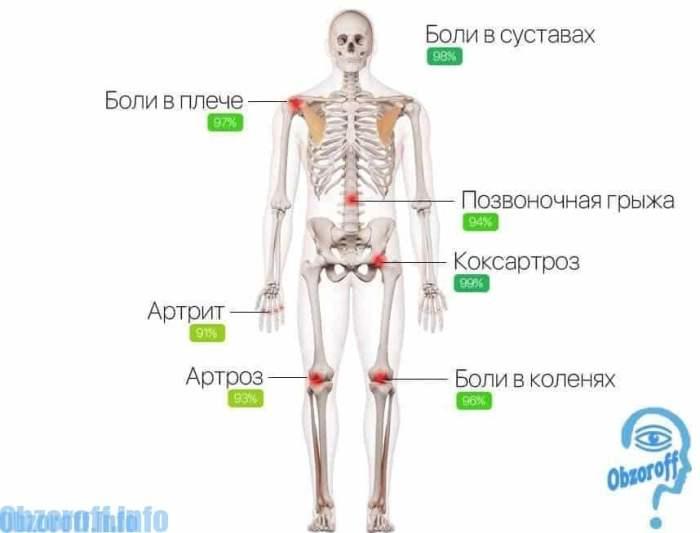 Симптомы болезней суставов