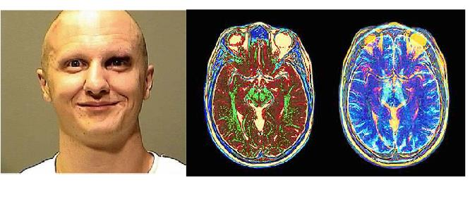 Loughner and brain imaging