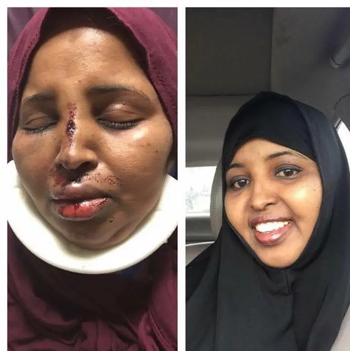 Image result for Somalian woman beat up