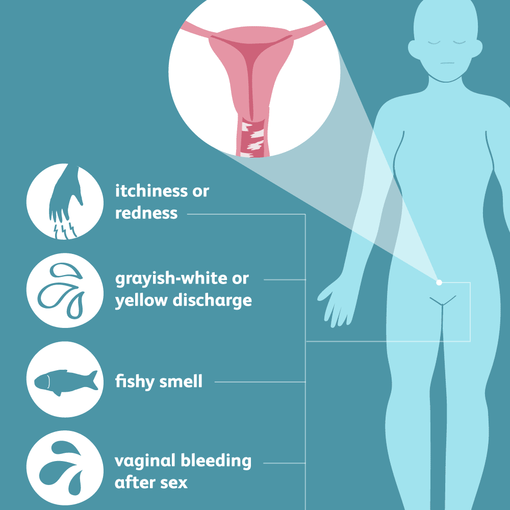 These are the symptoms of Bacterial Vaginosis