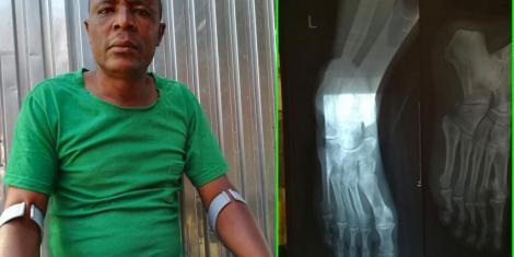 John Mwinga whose foot was run over by a car belonging to Waititu