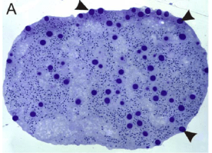 Fig. 4: The spermatozeugmatas, or sperm package. The arrows point to the cnidocytes, or stinging cells.
