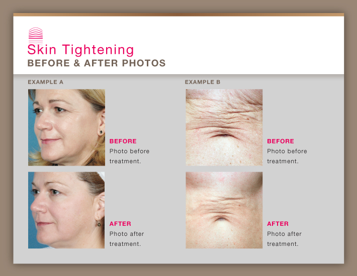 Skin Tightening Orange County