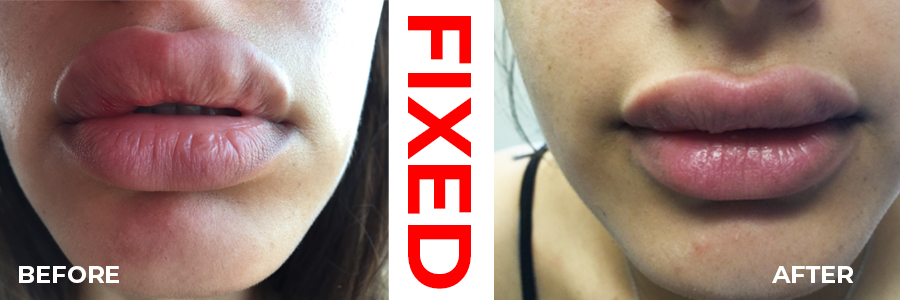 Fix-bad-lip-job-newport-beach