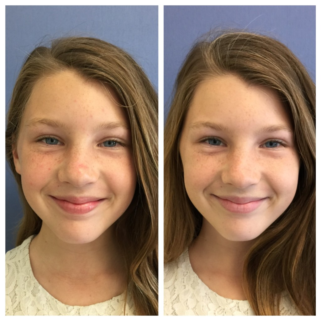 Before and After Facial CosmetiCare